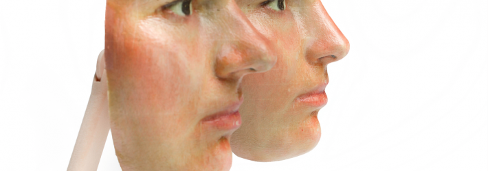 3D_Mask_Rhinoplasty