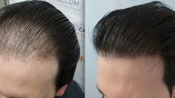 What Is Hair Transplant – How Much Does it Cost