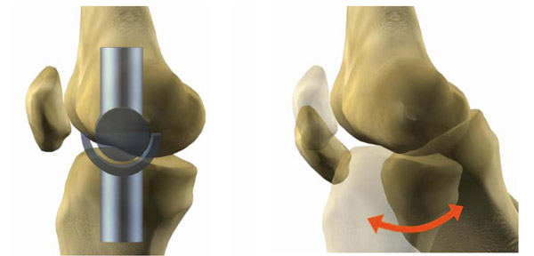 bms-knee-joint