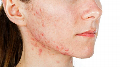 Homeopathy in Acne