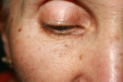 Homeopathy in Pigmentation