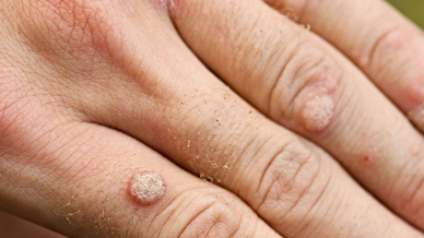 Homeopathy in Warts