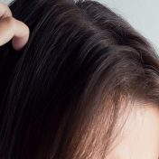 best shampoo for scalp sores