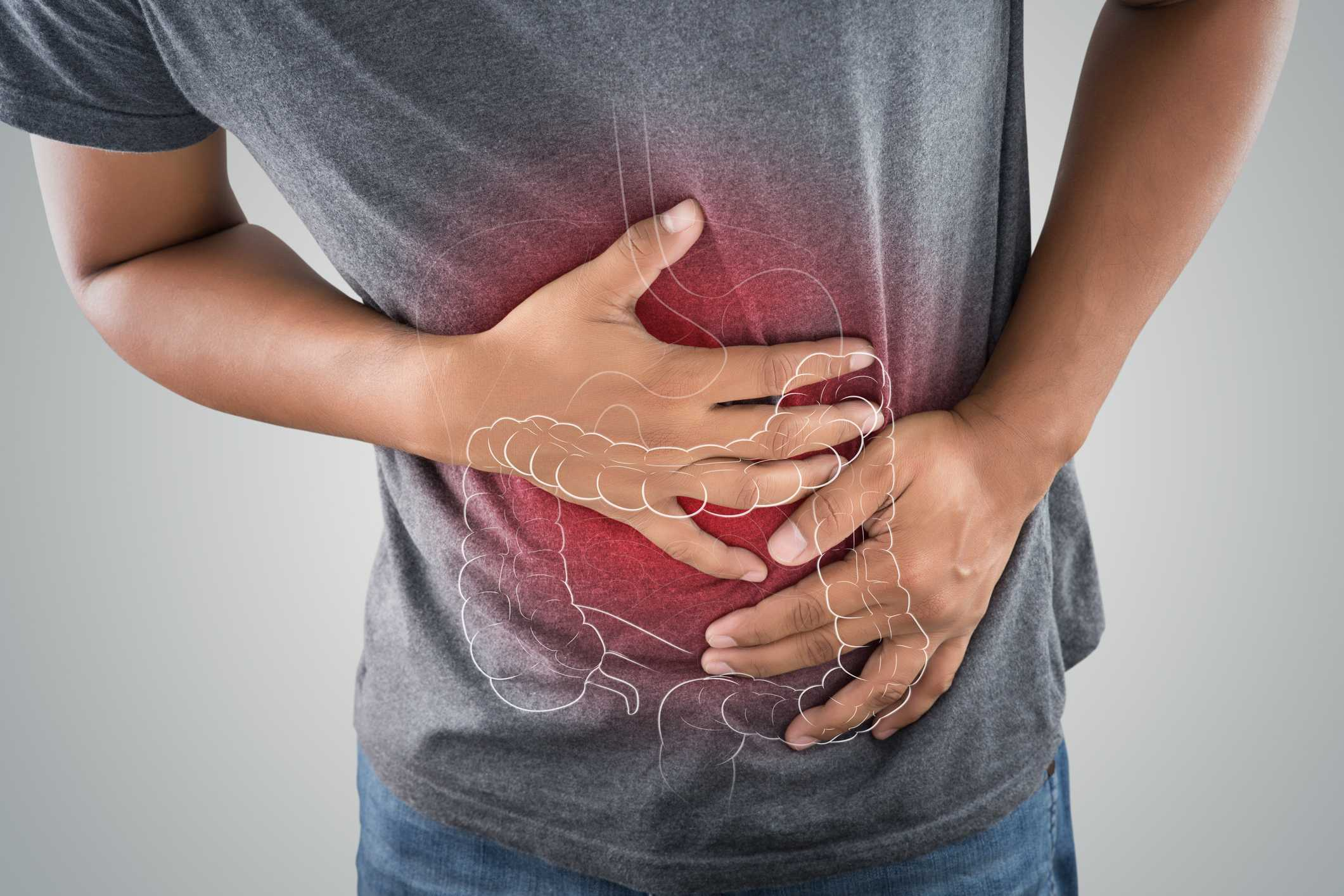 Where to Find Long Island NY Colorectal Specialists for Colon and Rectal Surgery